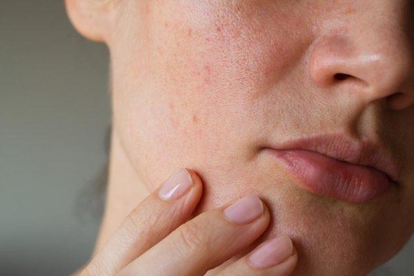 Acne treatments,