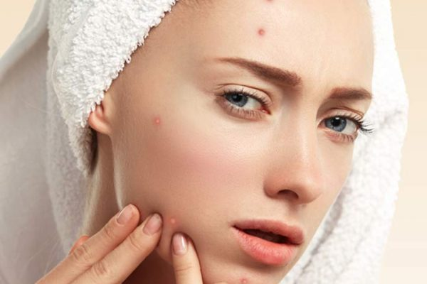 How to treat acne?