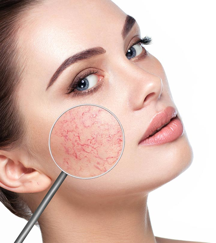 causes of dry and damaged skin